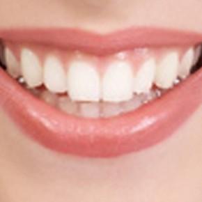 Вам требуется зубной протез?