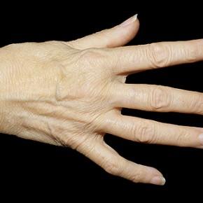 Ревматоидный артрит – что это?