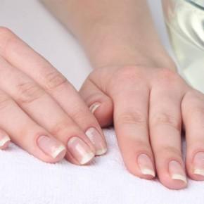 Как отбелить ногти в домашних условиях?