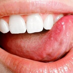 Как лечить язвочки на языке