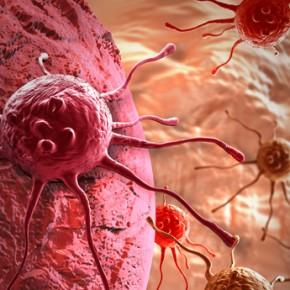 Ожирение и рак: какая опасность повышена?