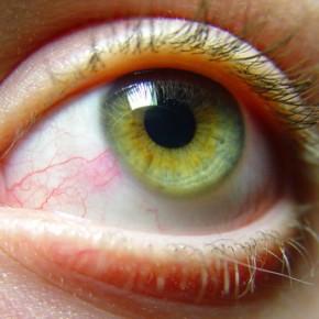 Красные глаза: 10 причин